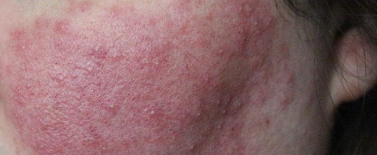comment-identifier-ton-type-de-peau-3-rosacée.jpg